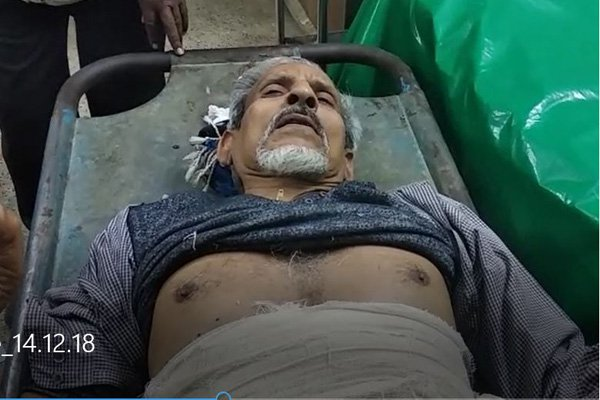 চাঁপাইনবাবগঞ্জে শ্রমিক লীগ নেতাকে ছুরিকাঘাত