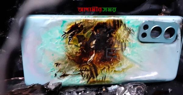 ওয়ানপ্লাসের ফোন বিস্ফোরিত হলো প্যান্টের পকেটে