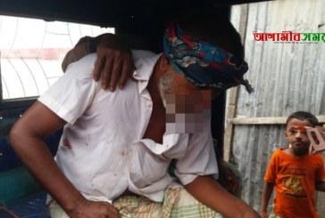 জগন্নাথপুরে সড়ক দুর্ঘটনায় ১ জন গুরুতর আহত
